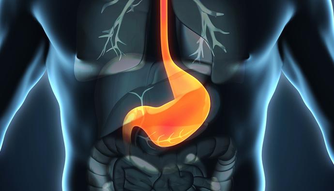 acidez-estomacal-v2-aao